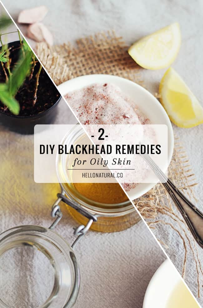 2-diy-blackhead-remedies-for-oily-skin