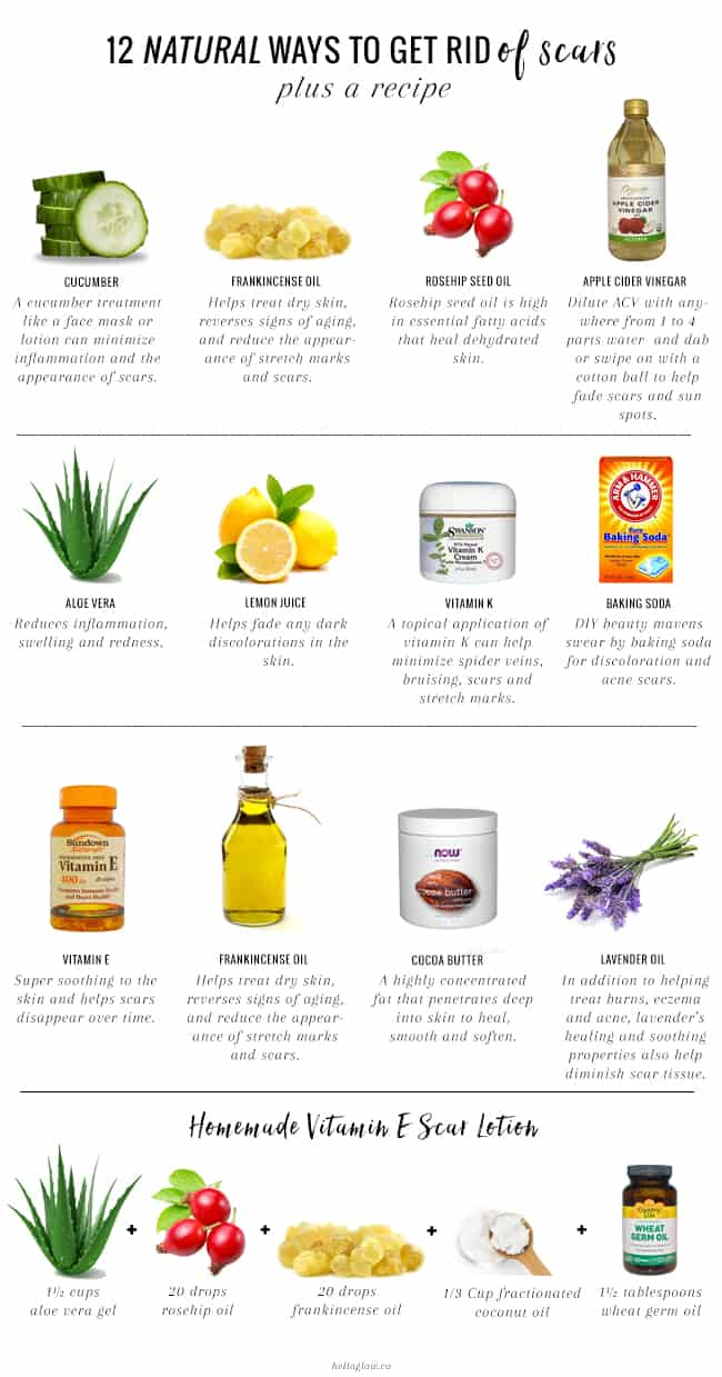 12 Natural Ways To Get Rid Of Scars Hello Glow
