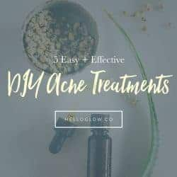 5 Easy + Effective DIY Acne Treatments