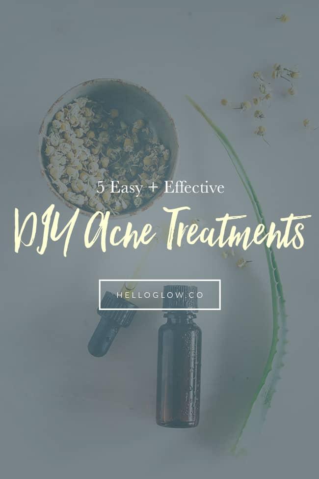 5 Easy + Effective DIY Acne Treatments