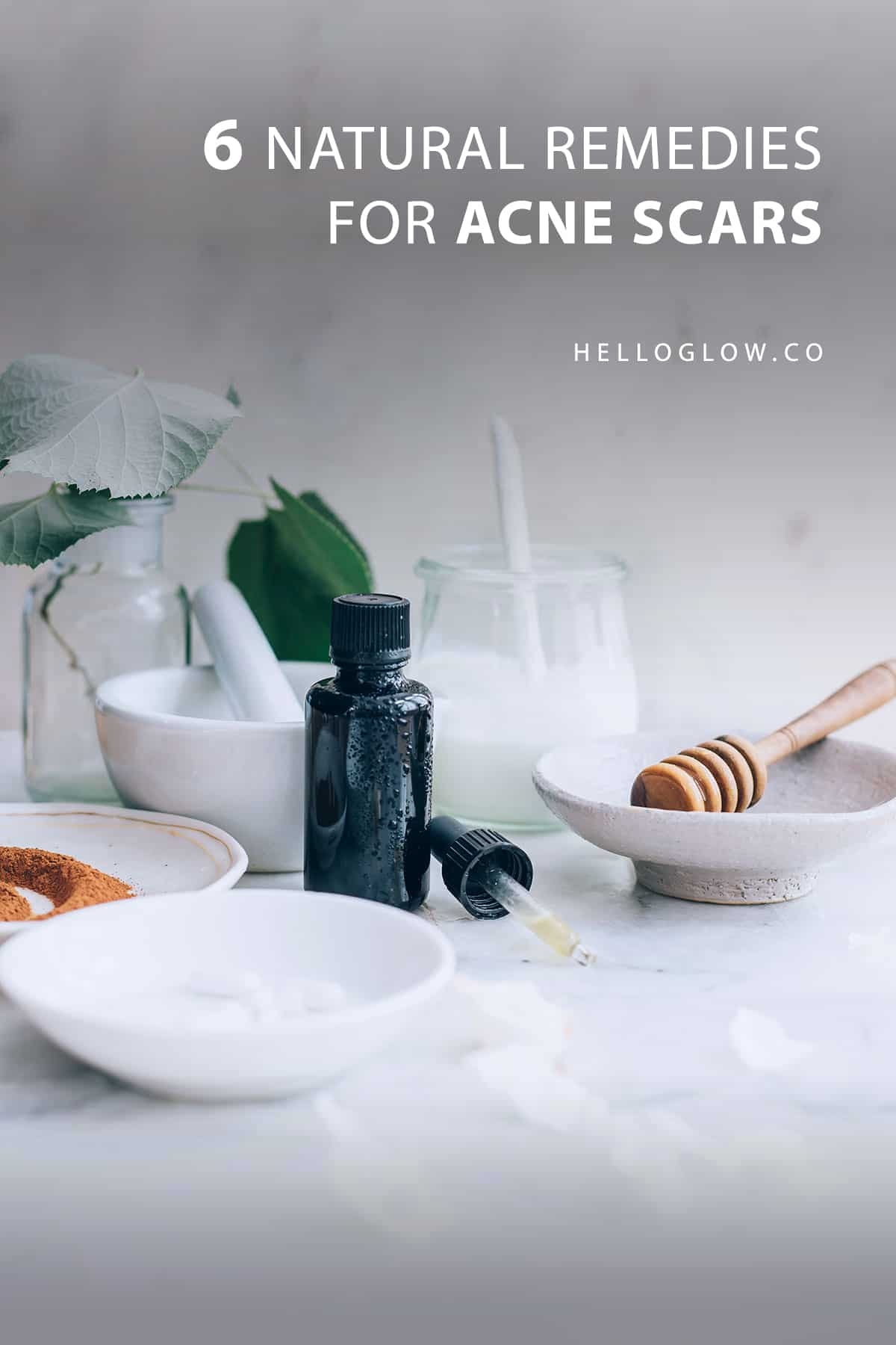 6 Natural Remedies for Acne Scars