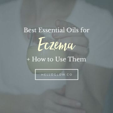 The Best Essential Oils for Eczema + How to Use Them | HelloGlow.co